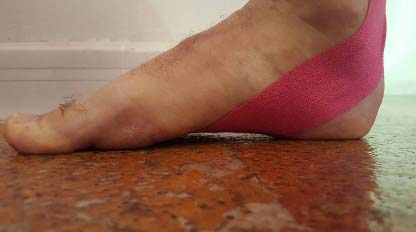taping piede corto