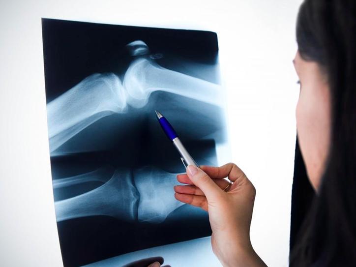 tecarterapia per il ginocchio e i suoi traumi