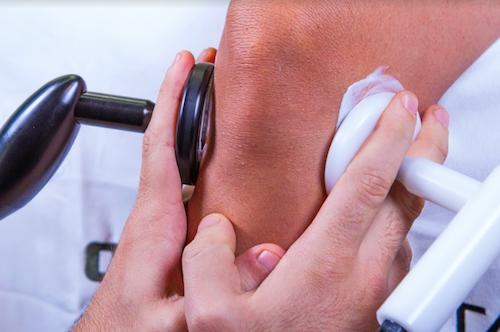 tecarterapia per le lesioni dei menischi e dei legamenti