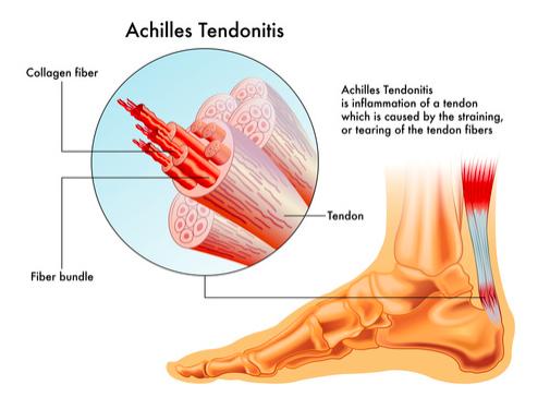 tendine d'Achille e percorso terapeutico
