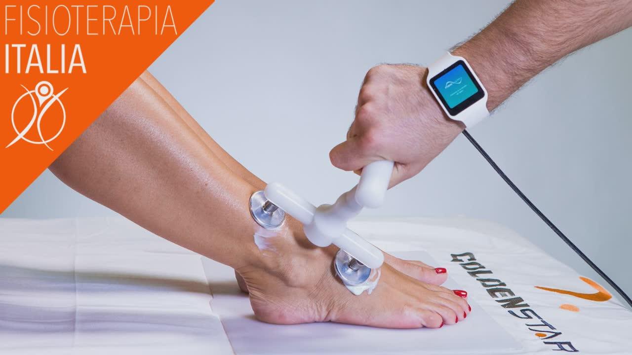 tendinite al piede curare con la fisioterapia