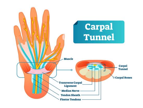 tunnel carpale cosa è