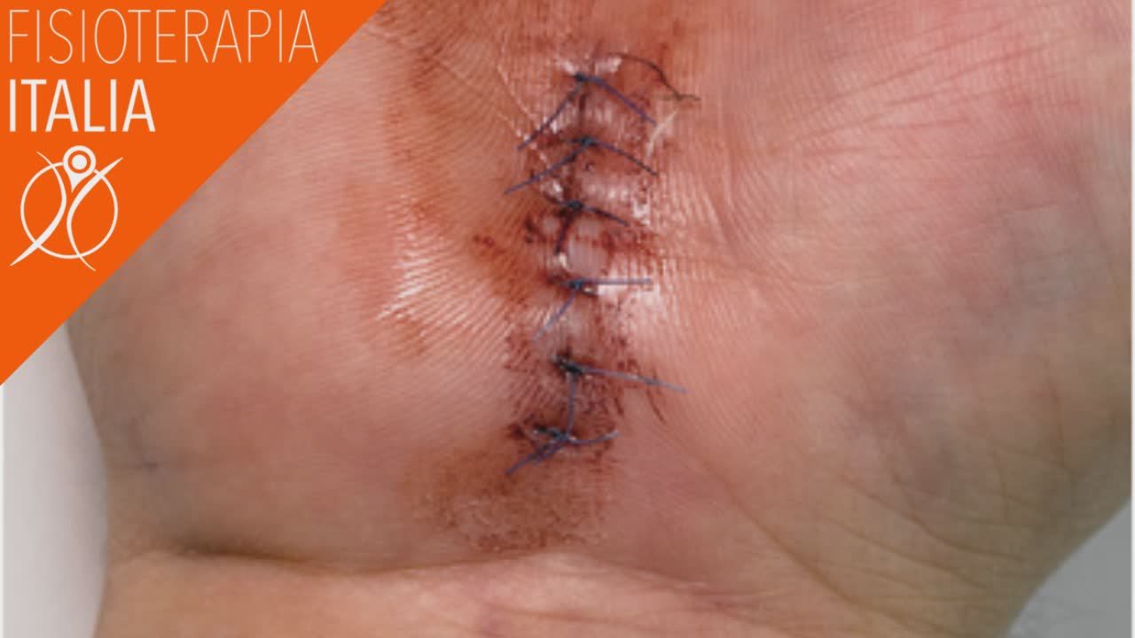 tunnel carpale intervento