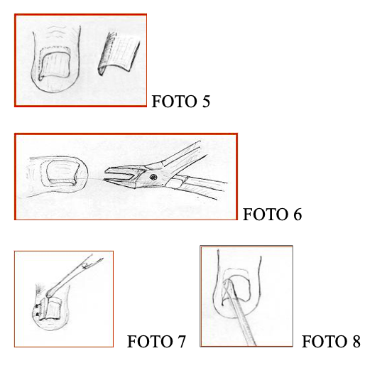 unghia incarnita fig5-6-7-8