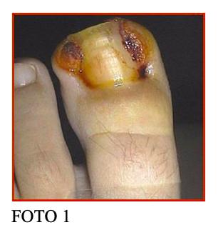 unghia incarnita fig1