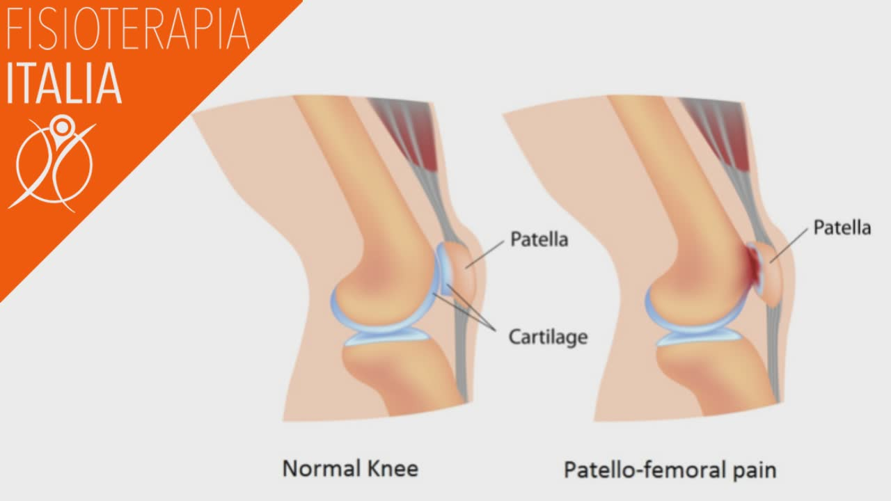 anatomia ginocchio e sindrome femoro rotula