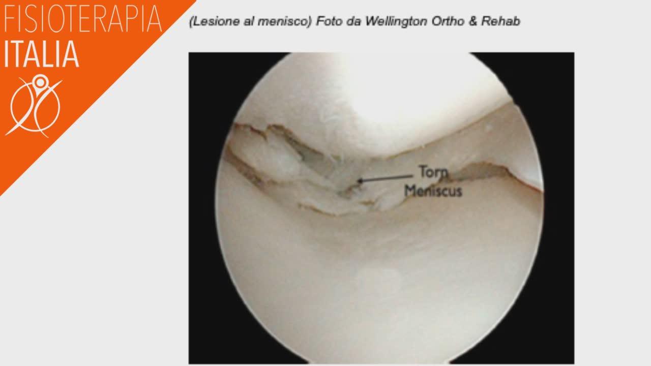 artroscopia menisco