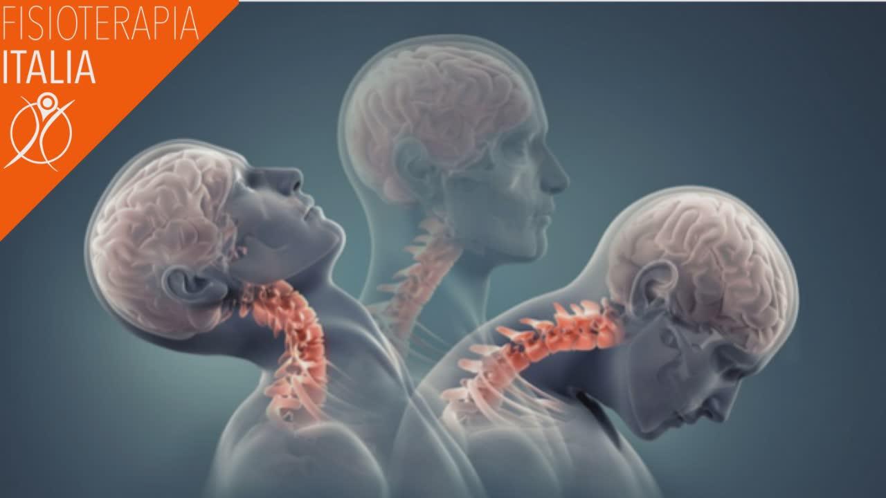 cause della vertigine cervicale