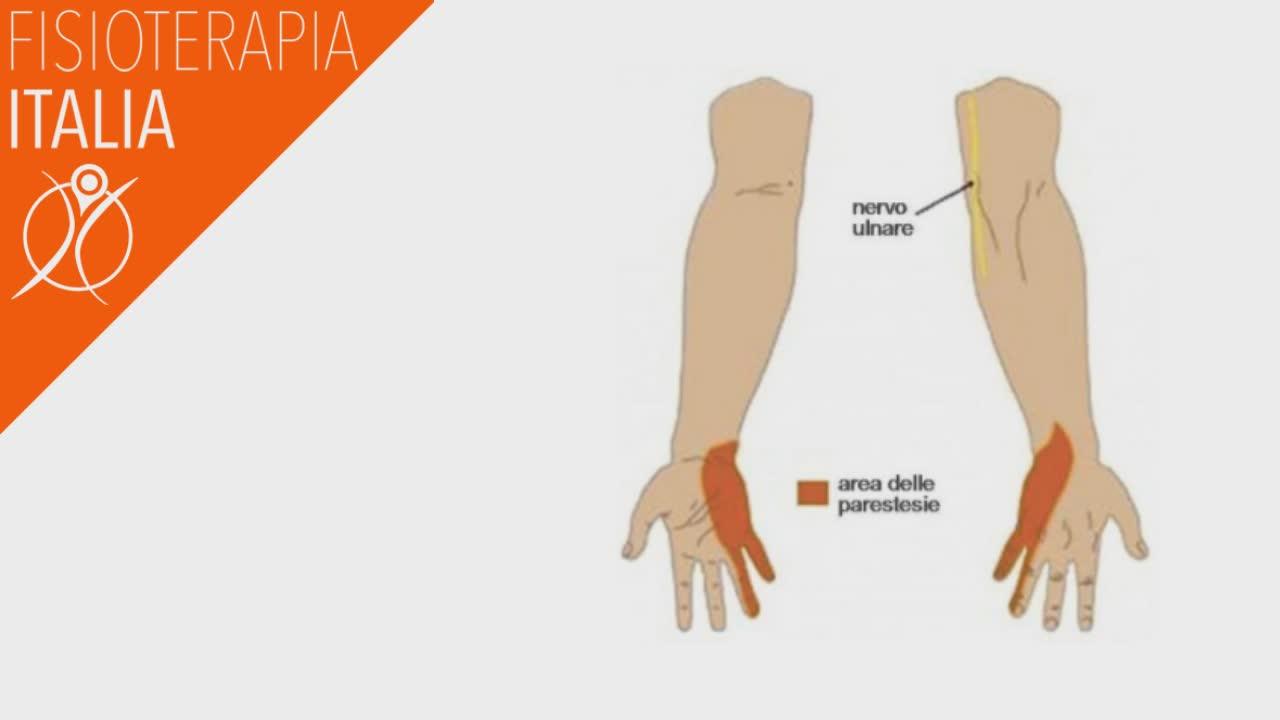 compressione nervo ulnare quali sono i sintomi