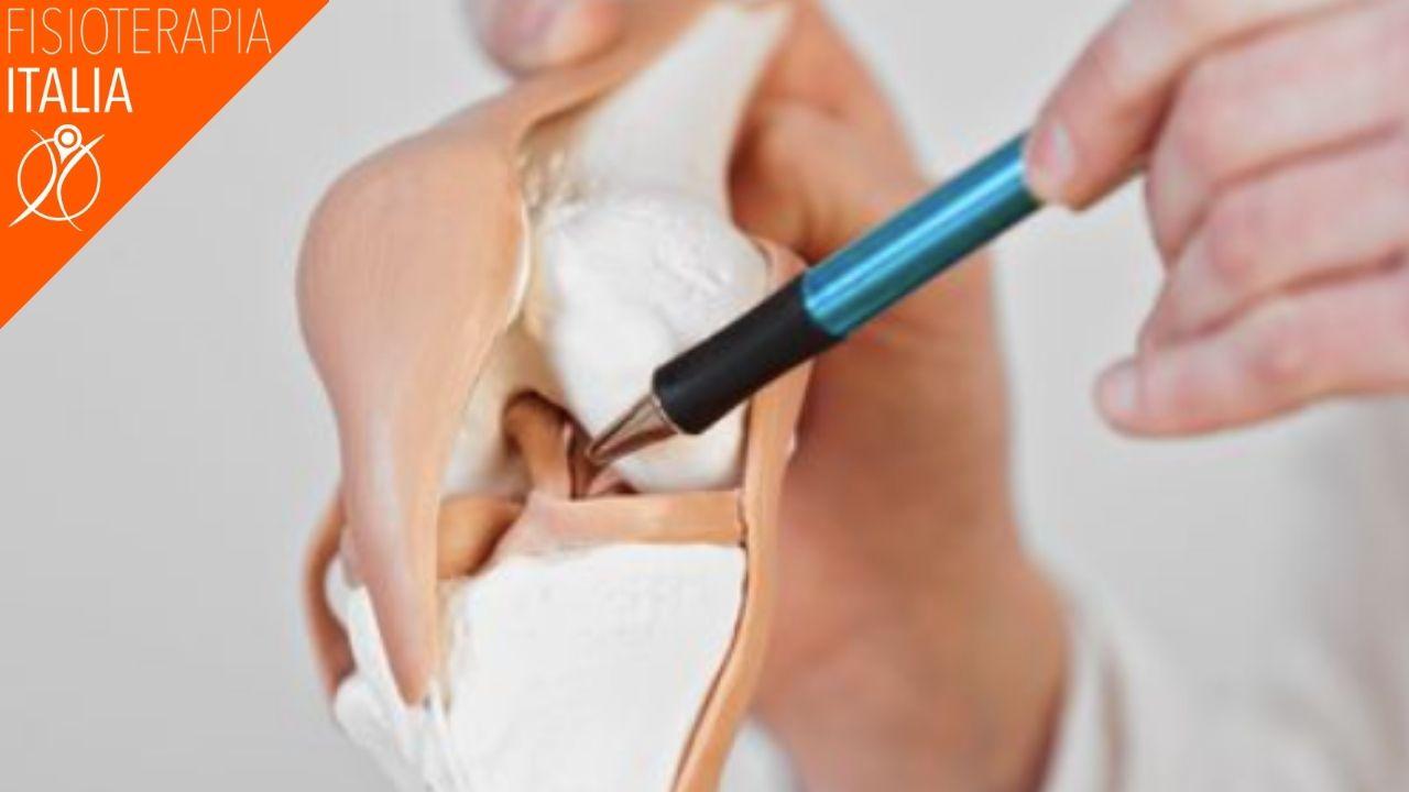 condropatia rotulea sintomi
