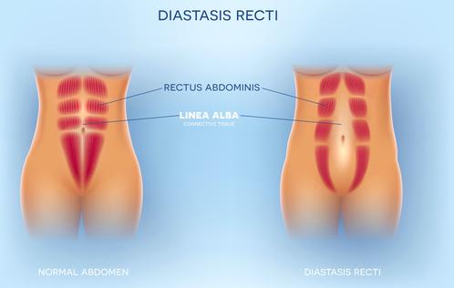 diastasi addominale come riconoscerla