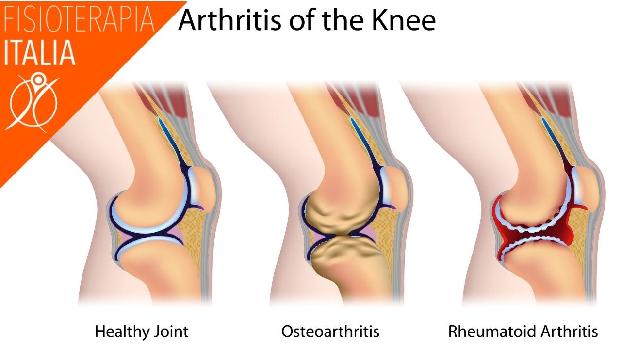 differenza tra artrosi e artrite