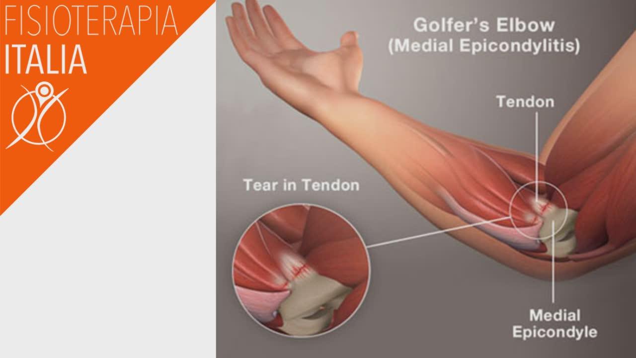 epitrocleite infiammazione del tendine