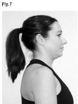 esercizio di retrazione cervicale