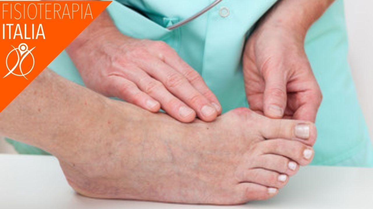 fisioterapia trattamenti alluce valgo