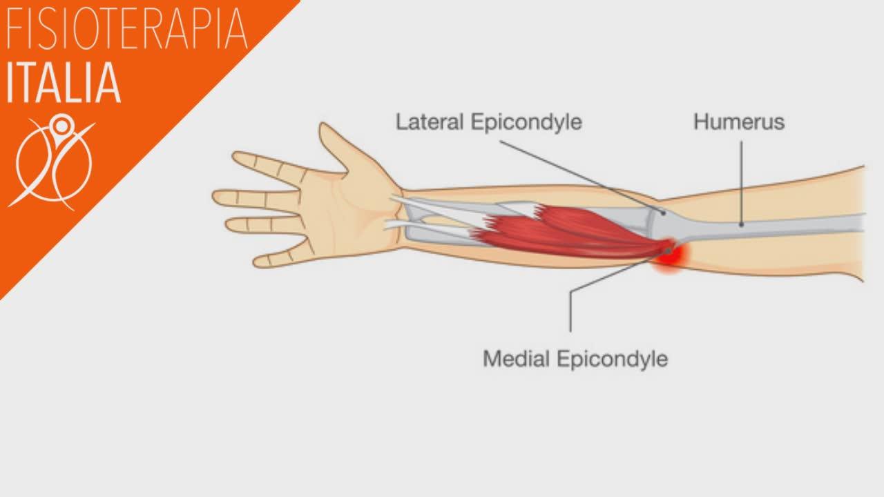 gomito epitroclea mediale