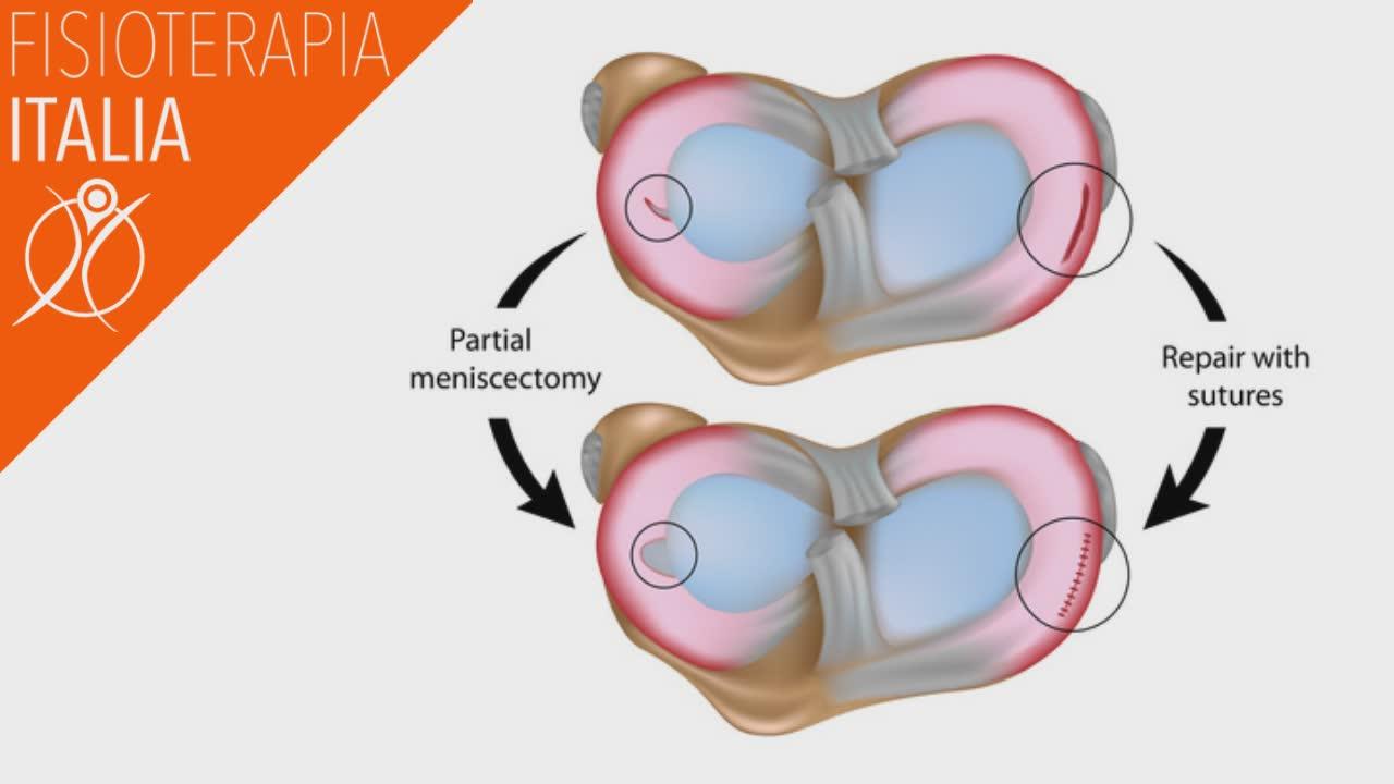 lesioni del menisco come interviene la chirurgia