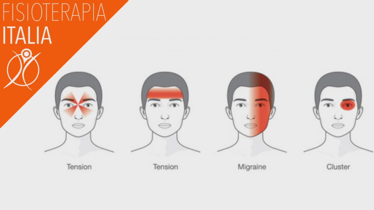 mal di testa tipologie diverse e diverse cause