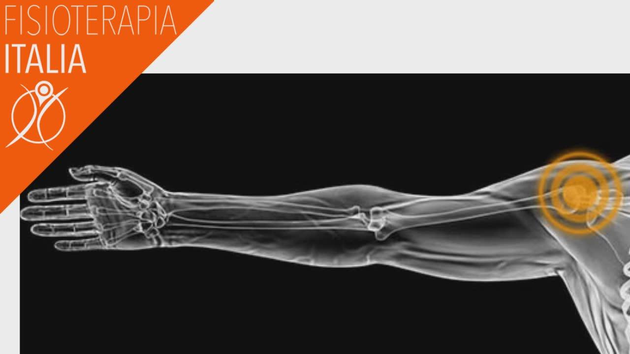 protesi alla spalla