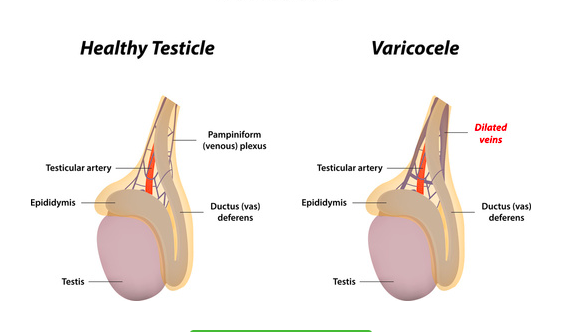 pubalgia e diagnosi differenziale con il varicocele