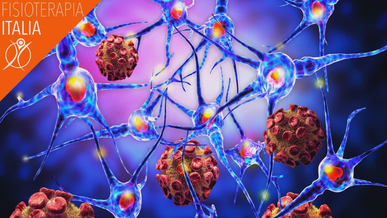 sclerosi multipla cosa succede