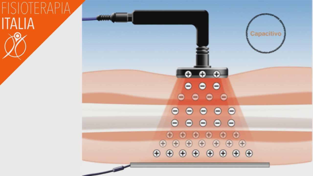 tecarterapia funzionamento sistema capacitivo
