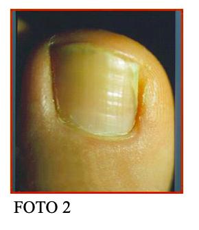 unghia incarnita fig 2