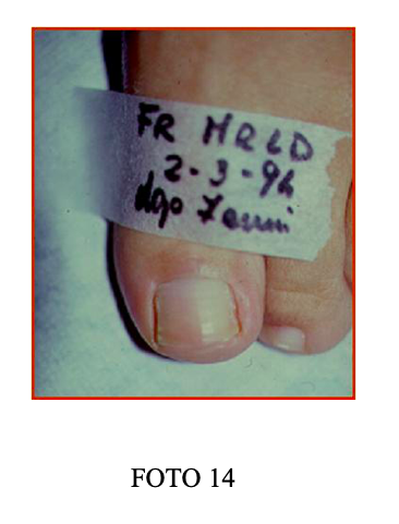 unghia incarnita fig 14