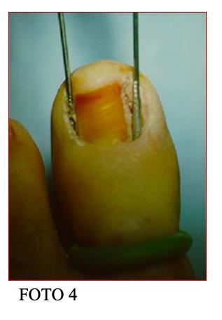 unghia incarnita fig4